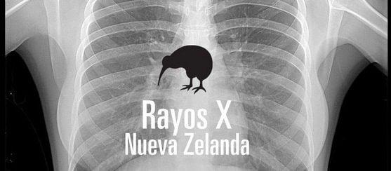 Rayos X Nueva Zelanda