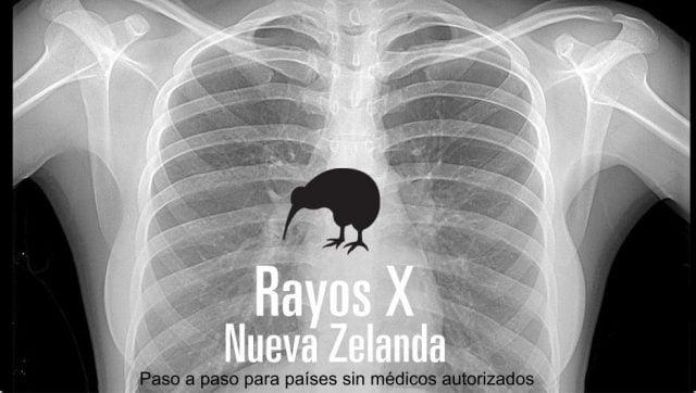 rayos nueva zelanda medicos autorizados